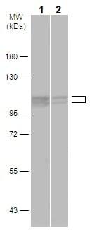 Western blot - Anti-Cullin 4B/CUL-4B antibody - N-terminal (ab227715)