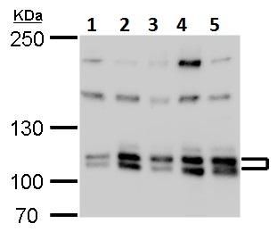 Western blot - Anti-Cullin 4B/CUL-4B antibody (ab227724)