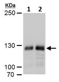 Western blot - Anti-Dnmt3a antibody - N-terminal (ab227725)