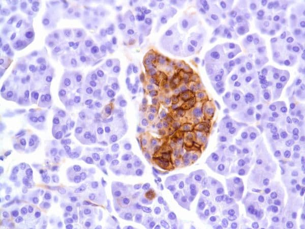 Immunohistochemistry (Formalin/PFA-fixed paraffin-embedded sections) - Anti-CD99 antibody [SP119] (ab227738)
