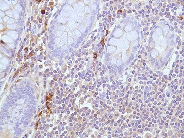 Immunohistochemistry (Formalin/PFA-fixed paraffin-embedded sections) - Anti-Human Kappa Light Chain antibody [SPM508] (ab227744)