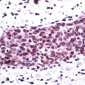 Immunohistochemistry (Formalin/PFA-fixed paraffin-embedded sections) - Anti-AKT1 (phospho S473) antibody (ab227748)