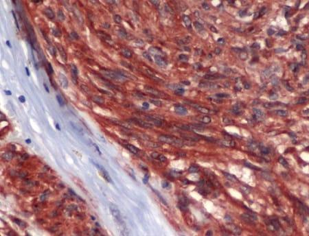 Immunohistochemistry (Formalin/PFA-fixed paraffin-embedded sections) - Anti-c-Kit antibody (ab227749)