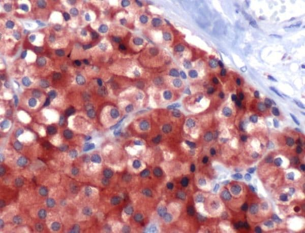 Immunohistochemistry (Formalin/PFA-fixed paraffin-embedded sections) - Anti-Parathyroid Hormone antibody - C-terminal (ab227757)