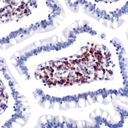 Immunohistochemistry (Formalin/PFA-fixed paraffin-embedded sections) - Anti-CCR7 antibody (ab227768)