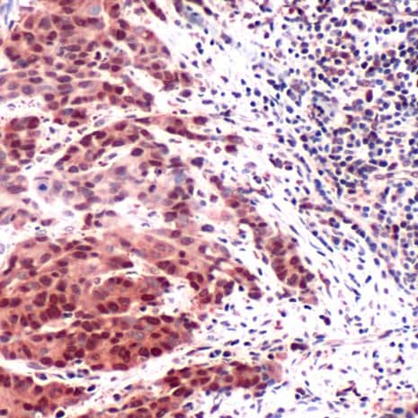 Immunohistochemistry (Formalin/PFA-fixed paraffin-embedded sections) - Anti-Thymidylate Synthase antibody - C-terminal (ab227774)