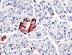 Immunohistochemistry (Formalin/PFA-fixed paraffin-embedded sections) - Anti-Vinculin antibody - C-terminal (ab227783)