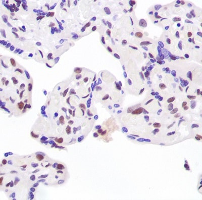Immunohistochemistry (Formalin/PFA-fixed paraffin-embedded sections) - Anti-Ku80 antibody (ab227793)