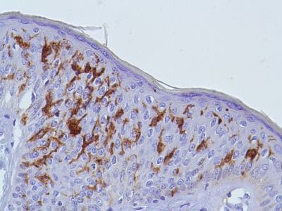 Immunohistochemistry (Formalin/PFA-fixed paraffin-embedded sections) - Anti-CD1a antibody (ab227797)