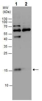Western blot - Anti-CDKN2A/p14ARF antibody (ab227808)