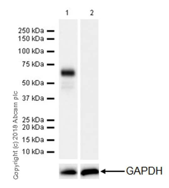 Western blot - Anti-n-Myc/MYCN antibody [EPR18982-8R-3] - ChIP Grade (ab227822)