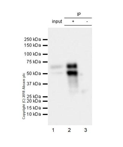 Immunoprecipitation - Anti-n-Myc/MYCN antibody [EPR18982-8R-3] - ChIP Grade (ab227822)
