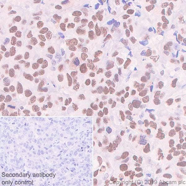 Immunohistochemistry (Formalin/PFA-fixed paraffin-embedded sections) - Anti-Dnmt3a antibody [EPR18455-94] (ab227823)