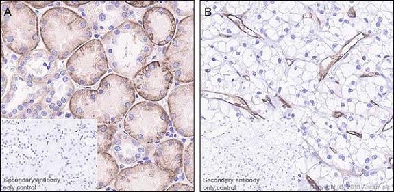 Immunohistochemistry (Formalin/PFA-fixed paraffin-embedded sections) - Anti-Insulin Receptor beta antibody [EPR22167] (ab227831)
