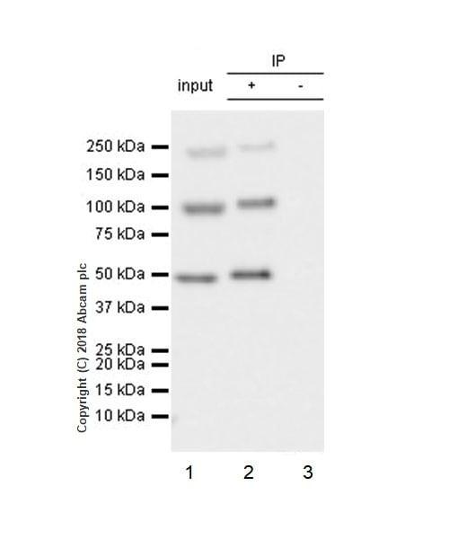 Immunoprecipitation - Anti-Insulin Receptor beta antibody [EPR22167] (ab227831)