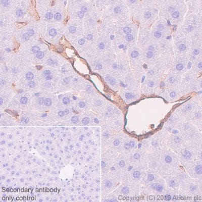 Immunohistochemistry (Formalin/PFA-fixed paraffin-embedded sections) - Anti-CD39 antibody [EPR22507-48] (ab227840)