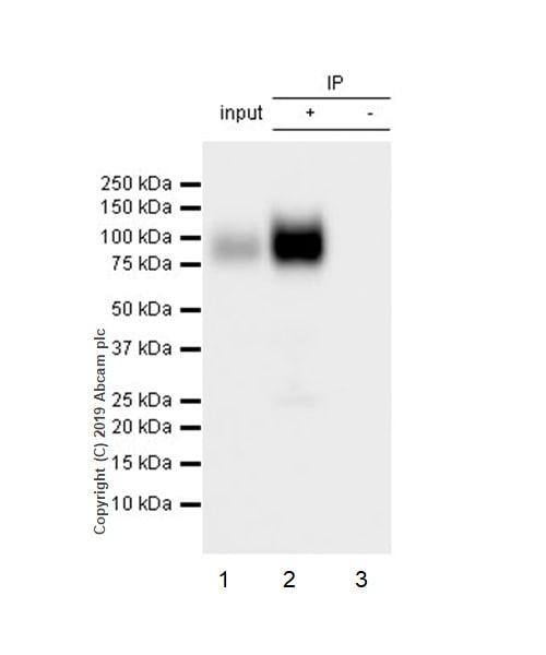Immunoprecipitation - Anti-CD39 antibody [EPR22507-48] (ab227840)
