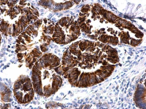 Immunohistochemistry (Formalin/PFA-fixed paraffin-embedded sections) - Anti-MBNL2 antibody (ab227858)