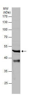 Western blot - Anti-Wnt16 antibody (ab227863)