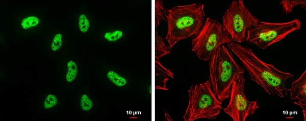 Immunocytochemistry/ Immunofluorescence - Anti-Dnmt3b antibody - N-terminal (ab227883)