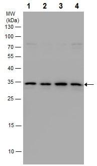 Western blot - Anti-MASH1/Achaete-scute homolog 1 antibody (ab227886)