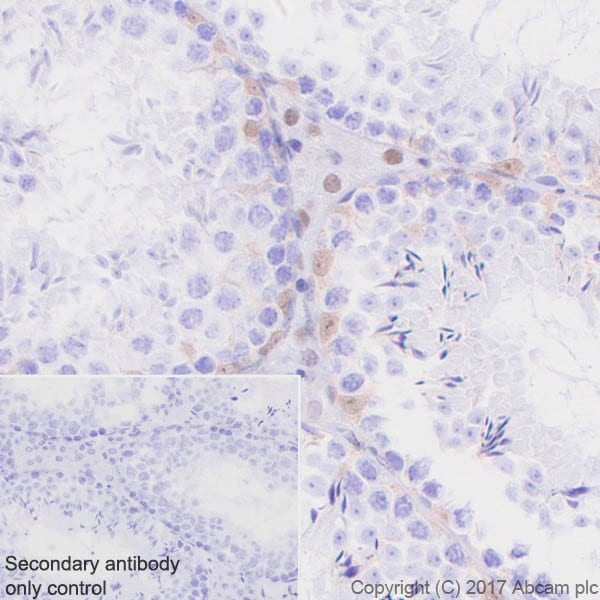 Immunohistochemistry (Formalin/PFA-fixed paraffin-embedded sections) - Anti-p27 KIP 1 antibody [EPR18388-138] - BSA and Azide free (ab227911)