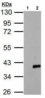 Western blot - Anti-ARPC1A antibody (ab227931)