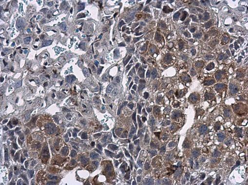 Immunohistochemistry (Formalin/PFA-fixed paraffin-embedded sections) - Anti-MIG-6 antibody (ab227944)