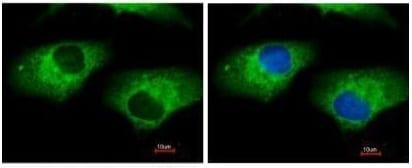 Immunocytochemistry/ Immunofluorescence - Anti-ALDH1A1 antibody (ab227946)