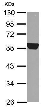 Western blot - Anti-ALDH1A1 antibody (ab227948)