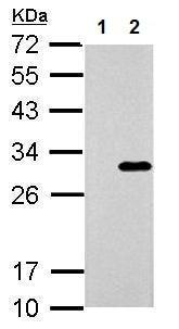 Western blot - Anti-Galectin 3 antibody - C-terminal (ab227949)