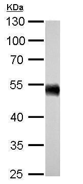 Western blot - Anti-ALDH1A1 antibody (ab227964)