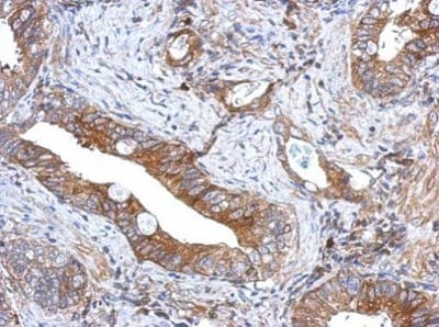 Immunohistochemistry (Formalin/PFA-fixed paraffin-embedded sections) - Anti-GCNT3 antibody (ab227972)