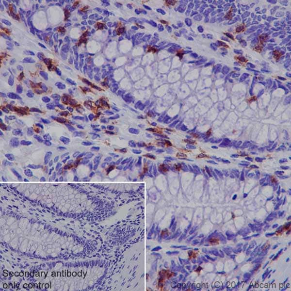 Immunohistochemistry (Formalin/PFA-fixed paraffin-embedded sections) - Anti-Lck antibody [EPR20798-55] (ab227976)