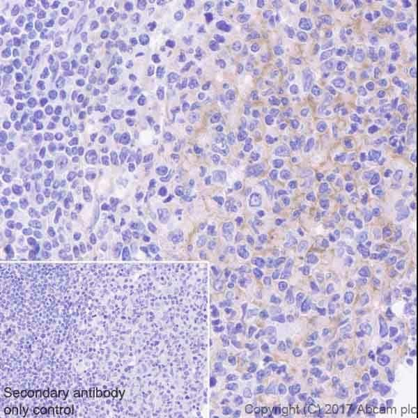 Immunohistochemistry (Formalin/PFA-fixed paraffin-embedded sections) - Anti-RON antibody [EPR20953] (ab227980)