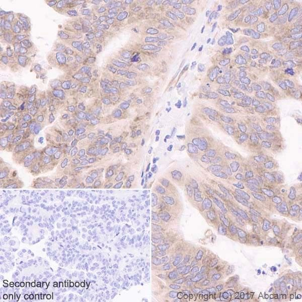 Immunohistochemistry (Formalin/PFA-fixed paraffin-embedded sections) - Anti-LYRIC/AEG1 antibody [EPR20797] (ab227981)