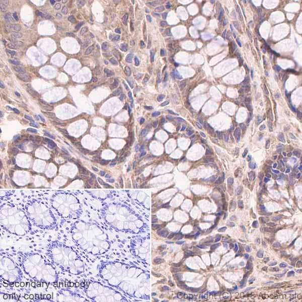 Immunohistochemistry (Formalin/PFA-fixed paraffin-embedded sections) - Anti-MGEA5/OGA antibody [EPR7154(B)] - BSA and Azide free (ab227989)