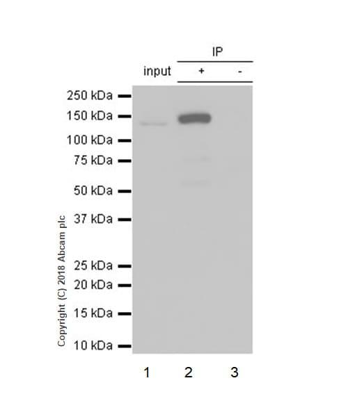Immunoprecipitation - Anti-MGEA5/OGA antibody [EPR7154(B)] - BSA and Azide free (ab227989)