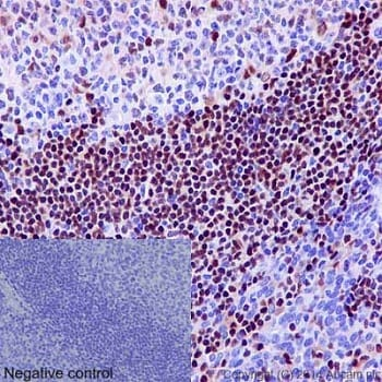 Immunohistochemistry (Formalin/PFA-fixed paraffin-embedded sections) - Anti-5 Lipoxygenase/5-LO antibody [EP6072(2)] - BSA and Azide free (ab227991)