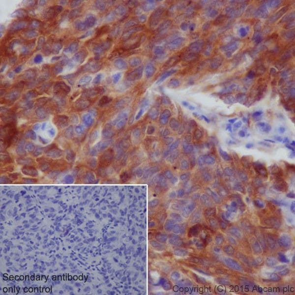 Immunohistochemistry (Formalin/PFA-fixed paraffin-embedded sections) - Anti-SQSTM1 / p62 antibody [EPR18351] - BSA and Azide free (ab227992)