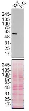 Western blot - Anti-SQSTM1 / p62 antibody [EPR18351] - BSA and Azide free (ab227992)