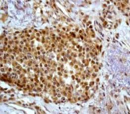 Immunohistochemistry (Formalin/PFA-fixed paraffin-embedded sections) - Anti-p38 antibody [Y122] - BSA and Azide free (ab227995)