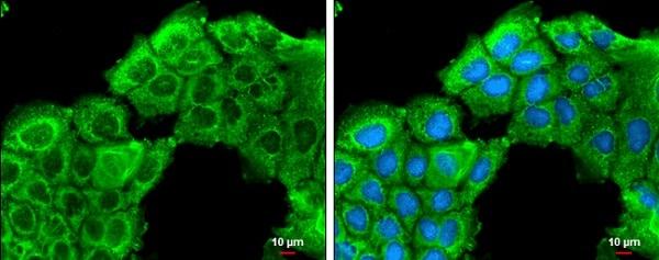 Immunocytochemistry/ Immunofluorescence - Anti-ROCK2 antibody - C-terminal (ab228000)