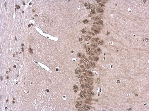 Immunohistochemistry (Formalin/PFA-fixed paraffin-embedded sections) - Anti-ROCK2 antibody - C-terminal (ab228000)
