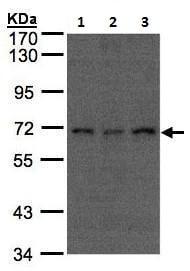 Western blot - Anti-Apc6 antibody - C-terminal (ab228007)