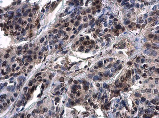 Immunohistochemistry (Formalin/PFA-fixed paraffin-embedded sections) - Anti-ASXL1 antibody - N-terminal (ab228009)