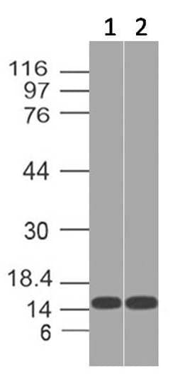 Western blot - Anti-THEM2 antibody (ab228011)