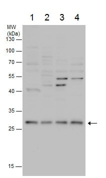 Western blot - Anti-COMTD1 antibody (ab228014)