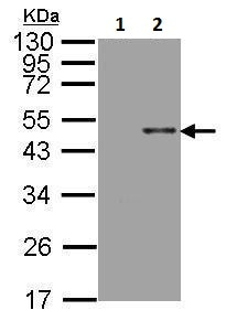 Western blot - Anti-ARSB antibody (ab228018)