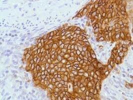 Immunohistochemistry (Formalin/PFA-fixed paraffin-embedded sections) - Anti-EpCAM antibody [SPM491], prediluted (ab228023)